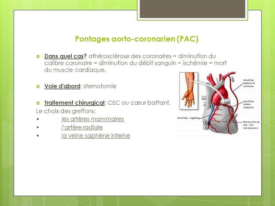Pontages aorto-coronarien (PAC) Dans quel cas.