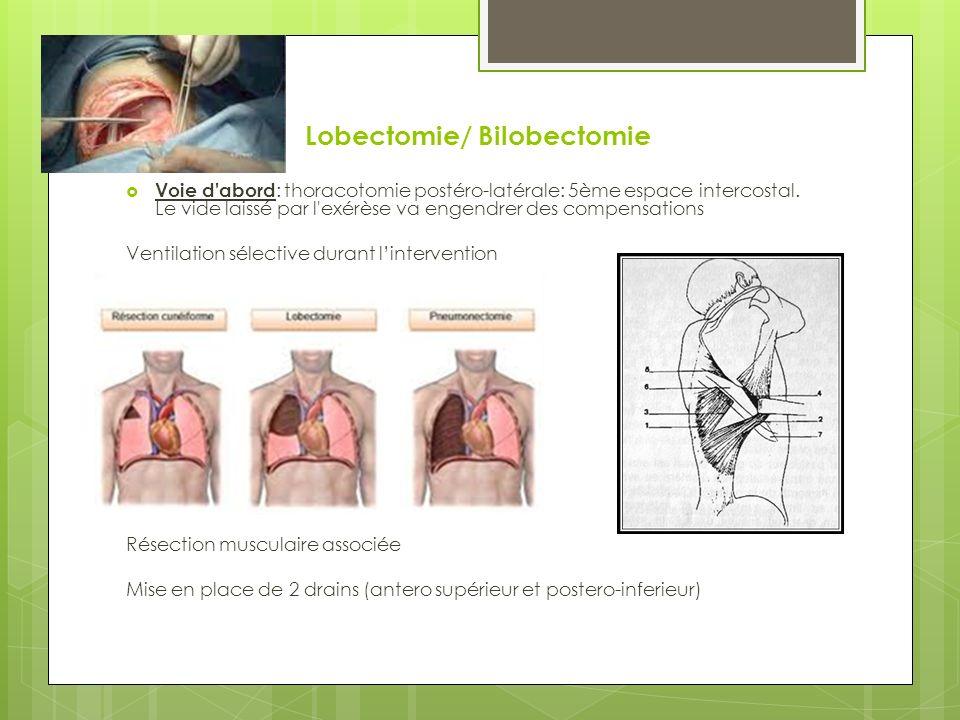 Lobectomie/ Bilobectomie Voie d abord : thoracotomie postéro-latérale: 5ème espace intercostal.