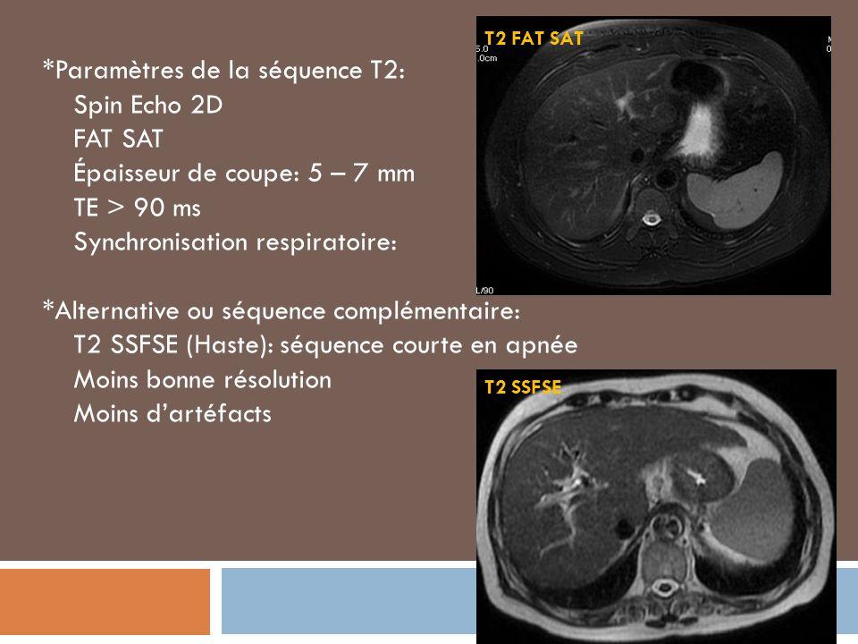 *Paramètres de la séquence T2: Spin Echo 2D FAT SAT Épaisseur de coupe: 5 – 7 mm TE > 90 ms Synchronisation respiratoire: *Alternative ou séquence complémentaire: T2 SSFSE (Haste): séquence courte en apnée Moins bonne résolution Moins dartéfacts T2 FAT SAT T2 SSFSE