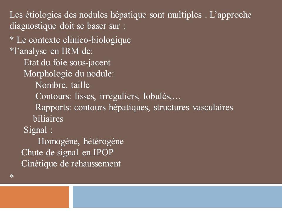 Les étiologies des nodules hépatique sont multiples.