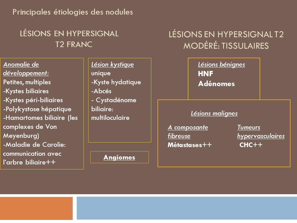 Principales étiologies des nodules LÉSIONS EN HYPERSIGNAL T2 FRANC Angiomes Anomalie de développement: Petites, multiples -Kystes biliaires -Kystes péri-biliaires -Polykystose hépatique -Hamartomes biliaire (les complexes de Von Meyenburg) -Maladie de Carolie: communication avec larbre biliaire++ Lésion kystique unique -Kyste hydatique -Abcés - Cystadénome biliaire: multiloculaire Lésions bénignes HNF Adénomes LÉSIONS EN HYPERSIGNAL T2 MODÉRÉ: TISSULAIRES Lésions malignes A composante fibreuse Métastases++ Tumeurs hypervasculaires CHC++