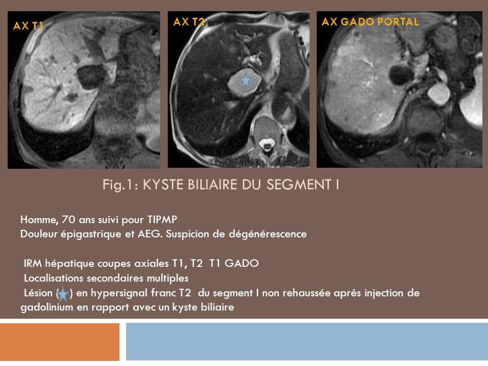 Fig.2 : ANGIOME DU SEGMENT V Homme, 48 ans Caractérisation dune lésion du segment V du foie IRM: Lésion du segt V Hypo T1/Hyper T2 Rehaussement: -périphérique en motte au temps précoce -Remplissage centripète -homogène au temps tardif AXIALE T2 FATSAT AXIALE DIFFUSION AXIALE GADO ARTAXIALE GADO PORT AXIALE GADO TARDIF AXIALE T1