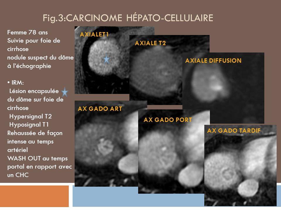 Fig.3:CARCINOME HÉPATO-CELLULAIRE Femme 78 ans Suivie pour foie de cirrhose nodule suspect du dôme à léchographie IRM: Lésion encapsulée du dôme sur foie de cirrhose Hypersignal T2 Hyposignal T1 Rehaussée de façon intense au temps artériel WASH OUT au temps portal en rapport avec un CHC AXIALET1 AXIALE T2 AXIALE DIFFUSION AX GADO ART AX GADO PORT AX GADO TARDIF