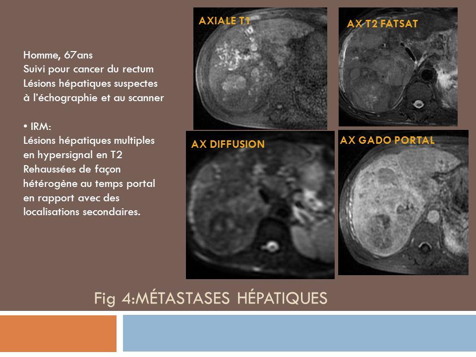 AX T2 FATSAT AX DIFFUSION AX GADO PORTAL AXIALE T1 Homme, 67ans Suivi pour cancer du rectum Lésions hépatiques suspectes à léchographie et au scanner IRM: Lésions hépatiques multiples en hypersignal en T2 Rehaussées de façon hétérogène au temps portal en rapport avec des localisations secondaires.