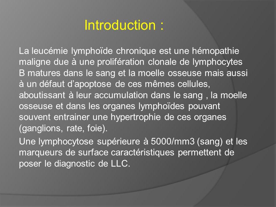 Introduction : La leucémie lymphoïde chronique est une hémopathie maligne due à une prolifération clonale de lymphocytes B matures dans le sang et la