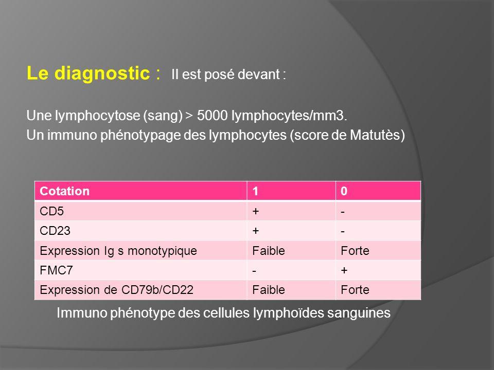 Le diagnostic : Il est posé devant : Une lymphocytose (sang) > 5000 lymphocytes/mm3. Un immuno phénotypage des lymphocytes (score de Matutès) Immuno p