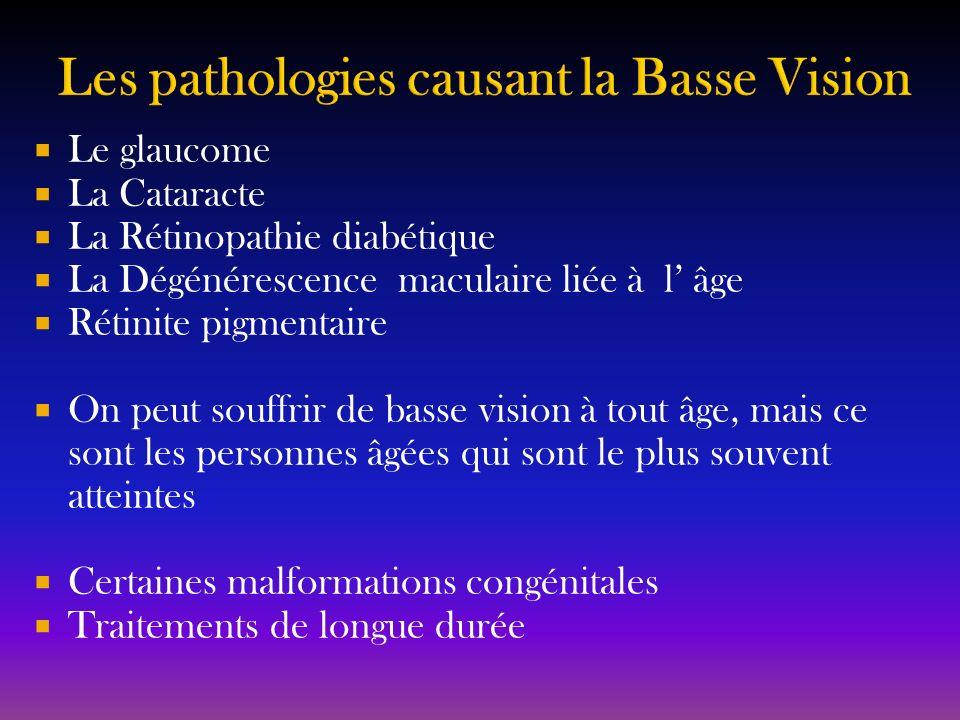 Le glaucome La Cataracte La Rétinopathie diabétique La Dégénérescence maculaire liée à l âge Rétinite pigmentaire On peut souffrir de basse vision à t