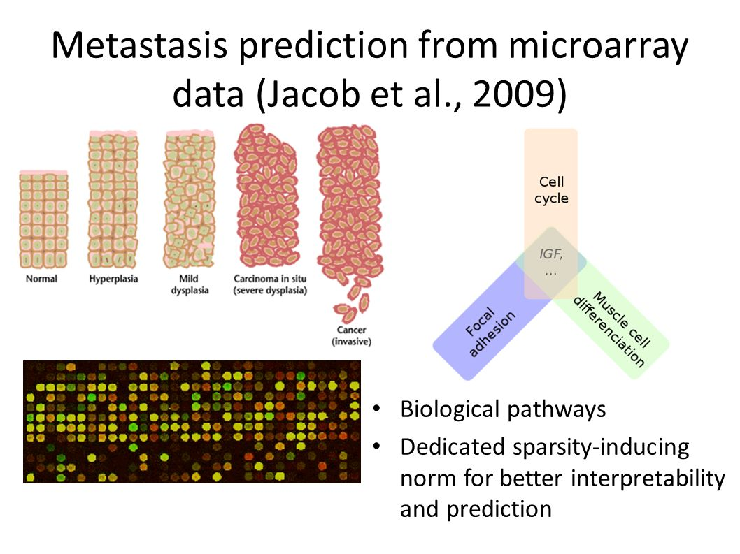 Metastasis prediction from microarray data (Jacob et al., 2009) Biological pathways Dedicated sparsity-inducing norm for better interpretability and prediction
