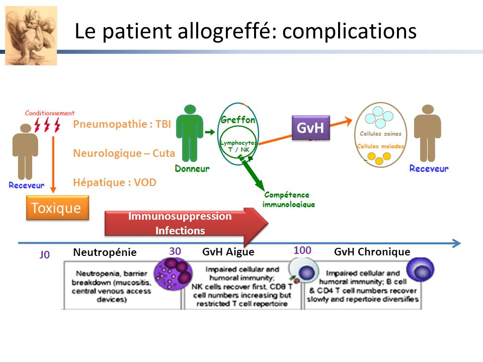 Le patient allogreffé: complications Toxique Pneumopathie : TBI Neurologique – Cutanée : ARA-C Hépatique : VOD Neutropénie 30 100 J0 Immunosuppression