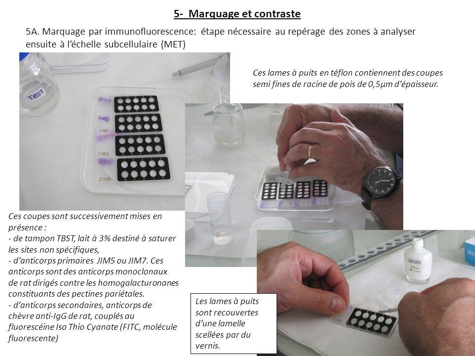 5- Marquage et contraste 5A. Marquage par immunofluorescence: étape nécessaire au repérage des zones à analyser ensuite à léchelle subcellulaire (MET)