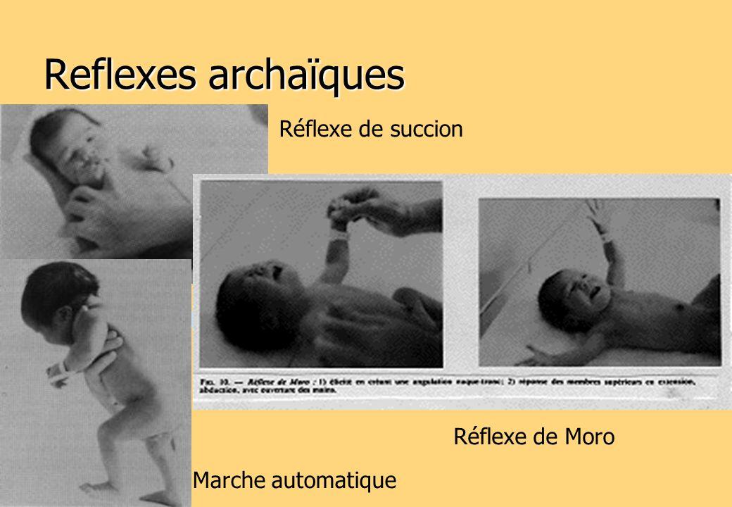 Reflexes archaïques Réflexe de Moro Marche automatique Réflexe de succion