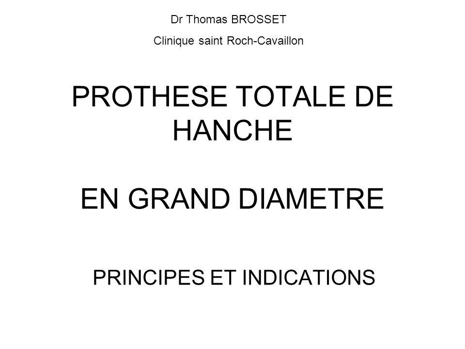 PROTHESE TOTALE DE HANCHE EN GRAND DIAMETRE PRINCIPES ET INDICATIONS Dr Thomas BROSSET Clinique saint Roch-Cavaillon