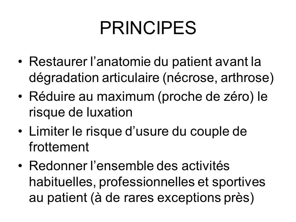 PRINCIPES Restaurer lanatomie du patient avant la dégradation articulaire (nécrose, arthrose) Réduire au maximum (proche de zéro) le risque de luxatio