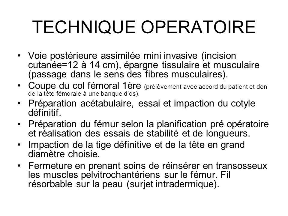 TECHNIQUE OPERATOIRE Voie postérieure assimilée mini invasive (incision cutanée=12 à 14 cm), épargne tissulaire et musculaire (passage dans le sens de