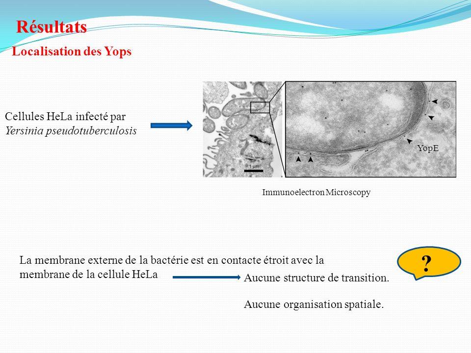 Résultats Localisation des Yops Cellules HeLa infecté par Yersinia pseudotuberculosis La membrane externe de la bactérie est en contacte étroit avec l