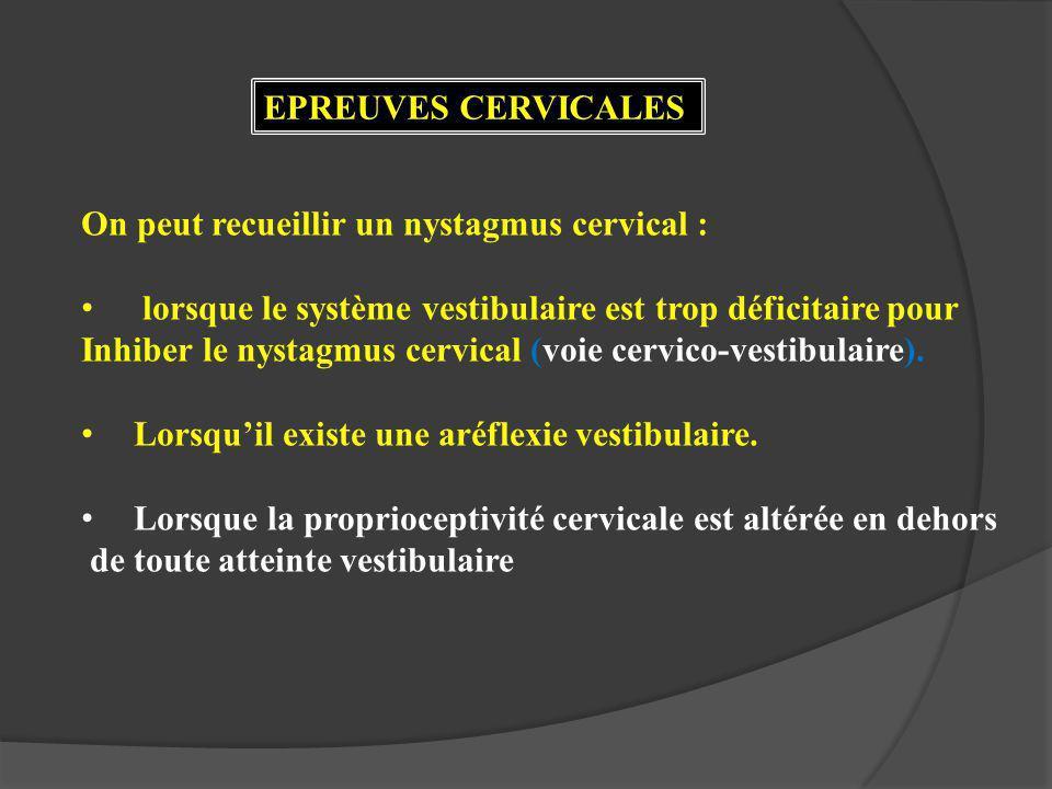 EPREUVES CERVICALES On peut recueillir un nystagmus cervical : lorsque le système vestibulaire est trop déficitaire pour Inhiber le nystagmus cervical (voie cervico-vestibulaire).