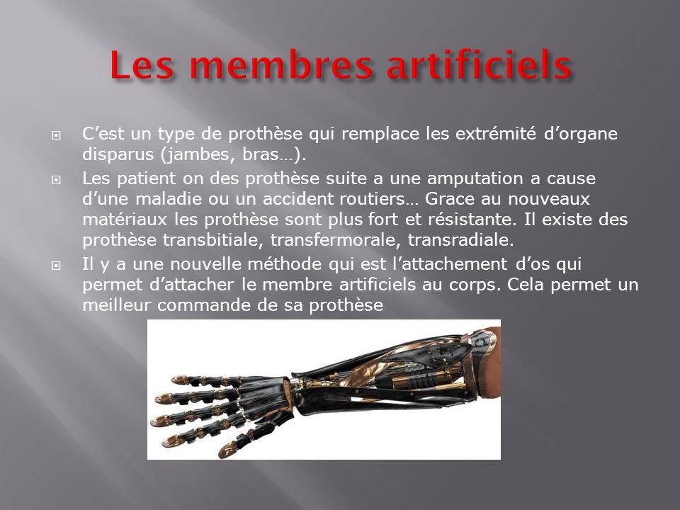 Cest un type de prothèse qui remplace les extrémité dorgane disparus (jambes, bras…). Les patient on des prothèse suite a une amputation a cause dune