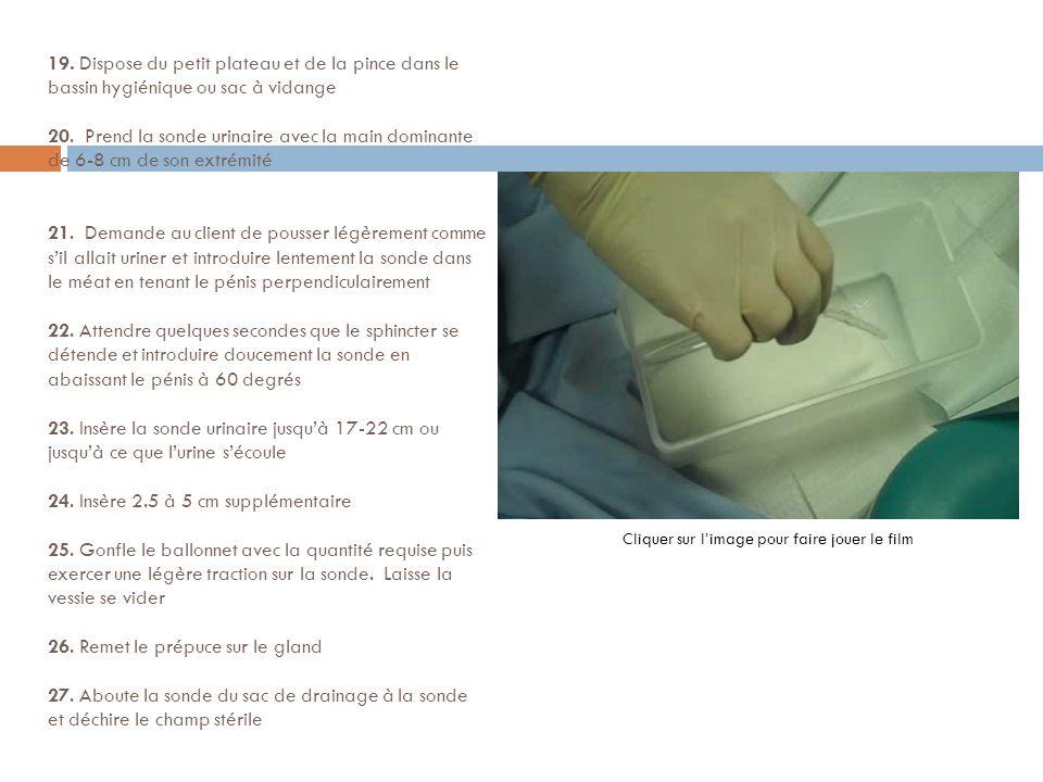 19. Dispose du petit plateau et de la pince dans le bassin hygiénique ou sac à vidange 20. Prend la sonde urinaire avec la main dominante de 6-8 cm de