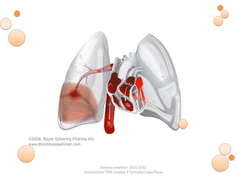 Delsaux Jonathan 2011-2012 Ambulancier TMS module 3 formation spécifique Symptômes : Cyanose Tachycardie (augmentation du rythme cardiaque) Douleur Thoracique (en coup de poignard) Angoisses Polypnée (difficultés à respirer normalement) Toux (saccompagne souvent de crachas sanguinolents) Prise en charge : APPEL SMUR et O2 URGENCE VITALE !!!