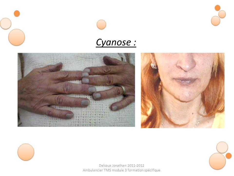 Delsaux Jonathan 2011-2012 Ambulancier TMS module 3 formation spécifique Cyanose :