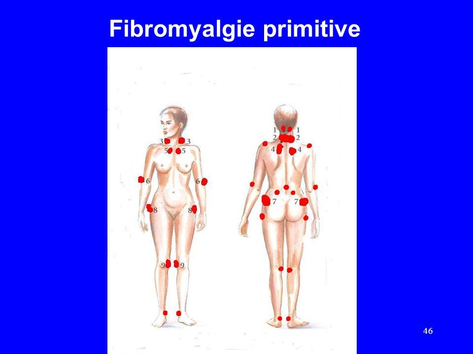 Fibromyalgie primitive 46