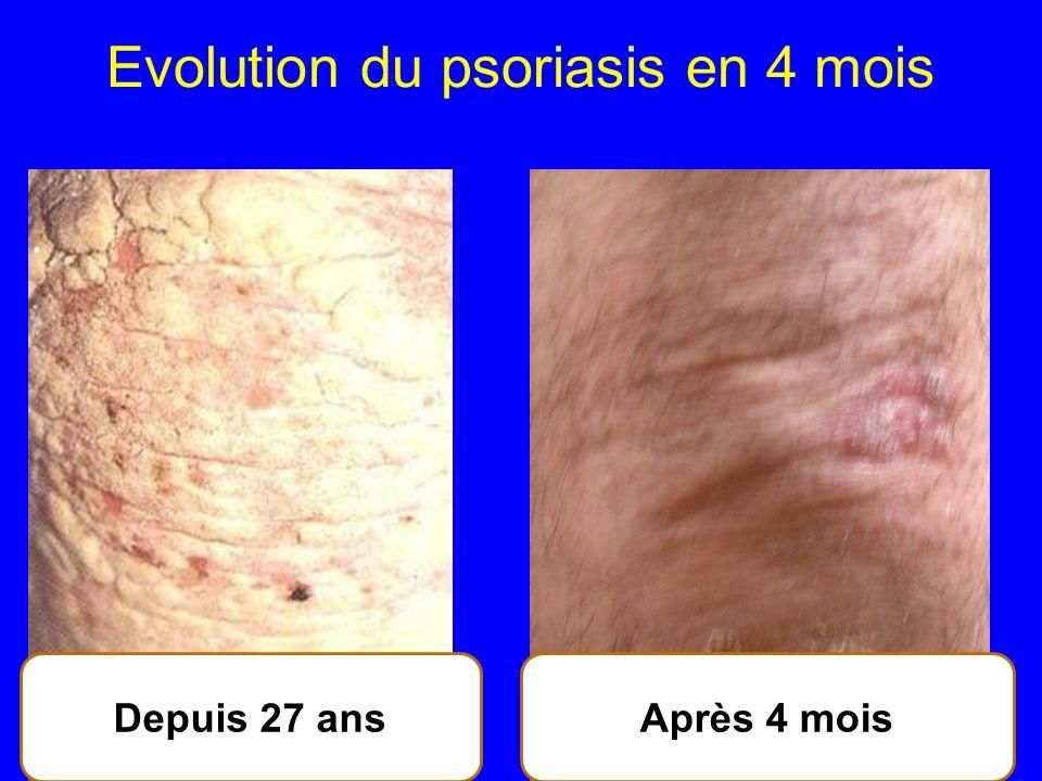 Evolution du psoriasis en 4 mois 52 Après 4 moisDepuis 27 ans.