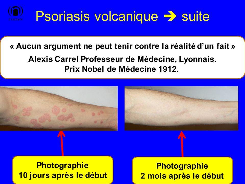 Psoriasis volcanique suite Application stricte de la diététique SG/NL + compléments alimentaires + Huile omégas 3/6 enrichie en D3 + cuisson à vapeur