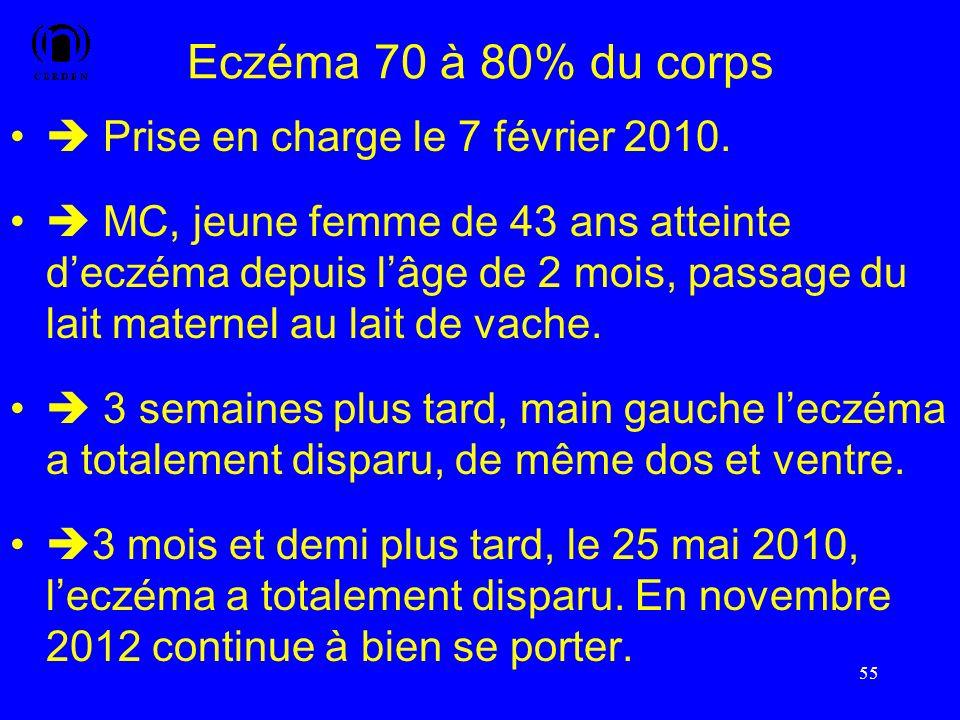 Eczéma 70 à 80% du corps Prise en charge le 7 février 2010. MC, jeune femme de 43 ans atteinte deczéma depuis lâge de 2 mois, passage du lait maternel