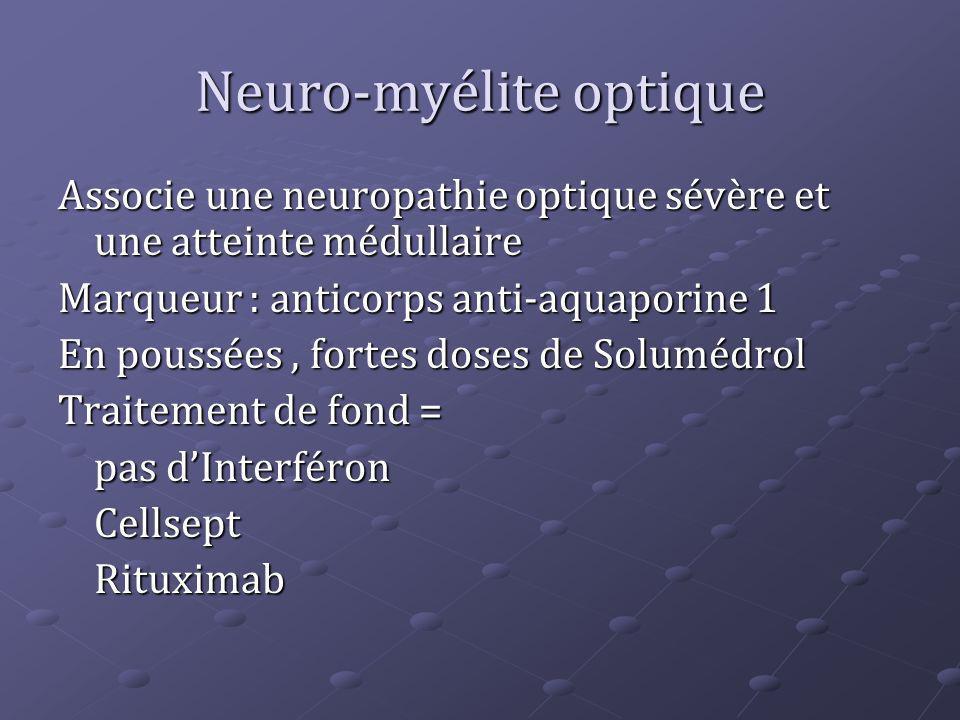 Neuro-myélite optique Associe une neuropathie optique sévère et une atteinte médullaire Marqueur : anticorps anti-aquaporine 1 En poussées, fortes dos
