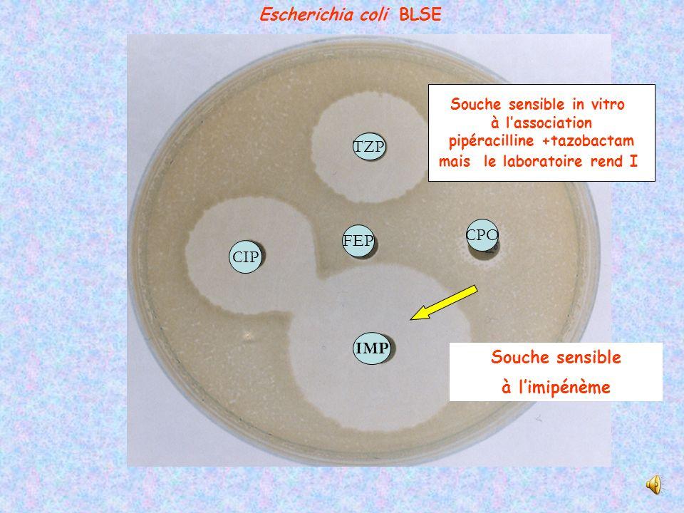 Synergie Augmentin et C3G Activité de type cefotaximase ATM CAZ AMCFEP CTX Escherichia coli BLSE