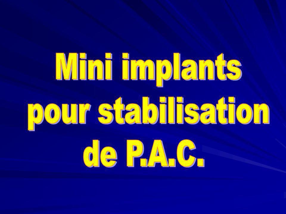 Validation clinique du guide implantaire Essayage en occlusion Clichés radiologiques de « guidage »