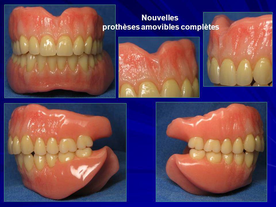 Nouvelles prothèses amovibles complètes