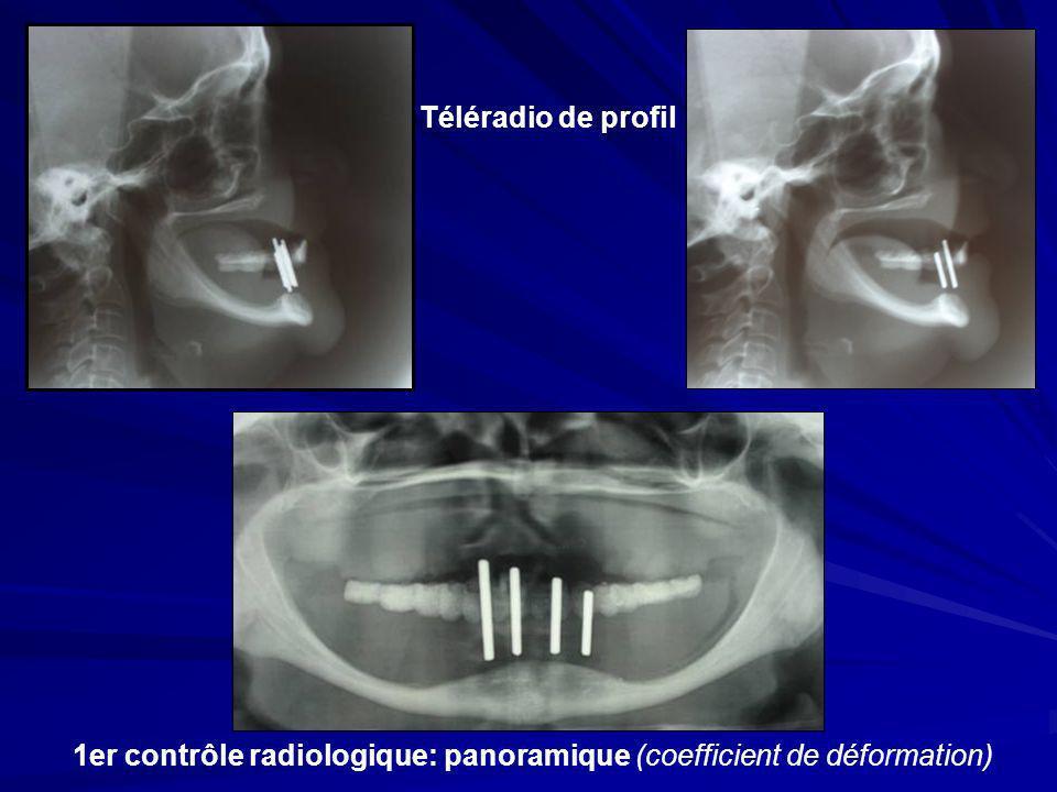 1er contrôle radiologique: panoramique (coefficient de déformation) Téléradio de profil
