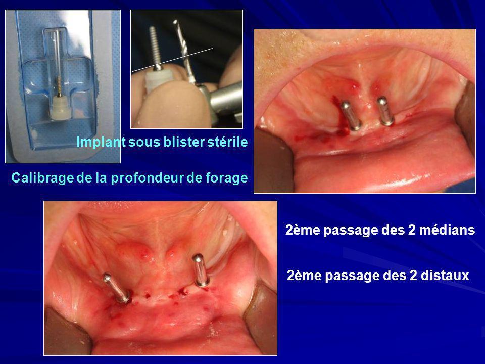 Calibrage de la profondeur de forage 2ème passage des 2 médians 2ème passage des 2 distaux Implant sous blister stérile