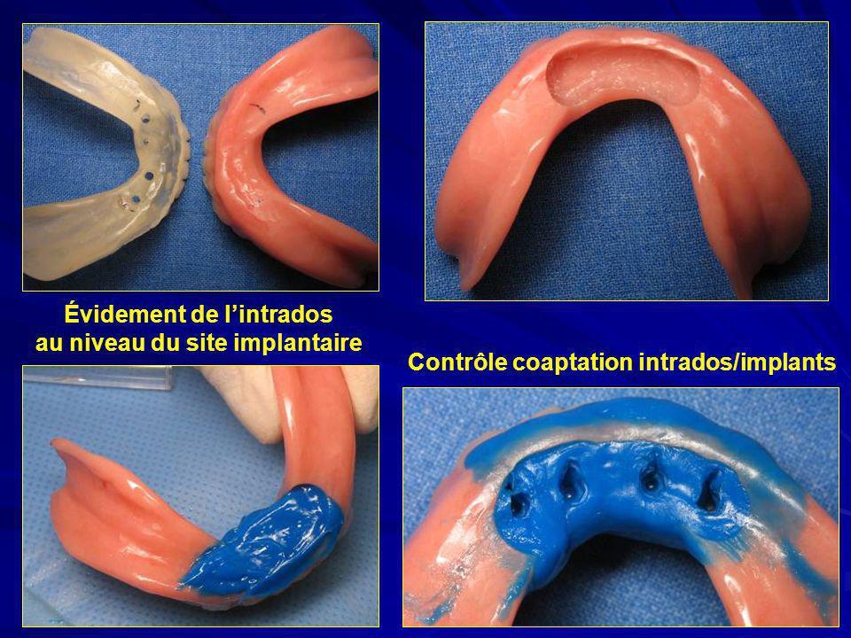 Évidement de lintrados au niveau du site implantaire Contrôle coaptation intrados/implants