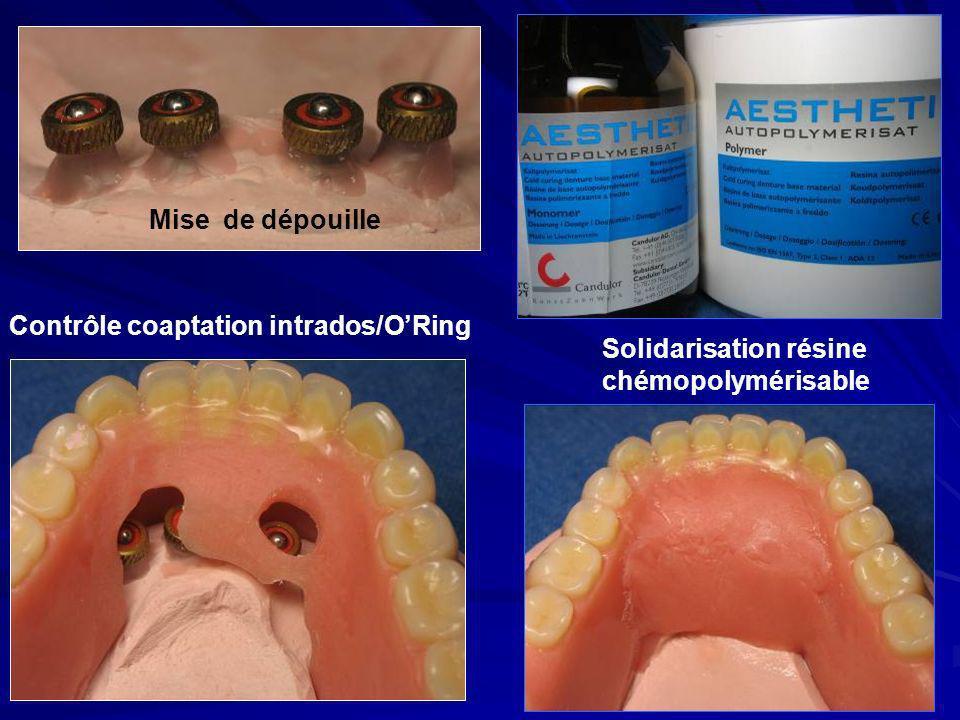 Mise de dépouille Contrôle coaptation intrados/ORing Solidarisation résine chémopolymérisable