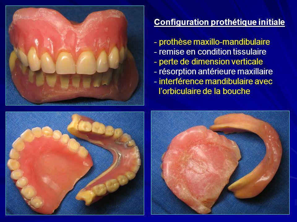 Configuration prothétique initiale - prothèse maxillo-mandibulaire - remise en condition tissulaire - perte de dimension verticale - résorption antéri