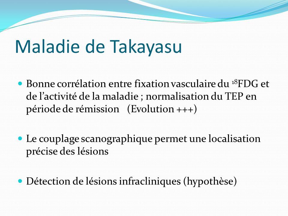 Maladie de Takayasu Bonne corrélation entre fixation vasculaire du 18 FDG et de lactivité de la maladie ; normalisation du TEP en période de rémission