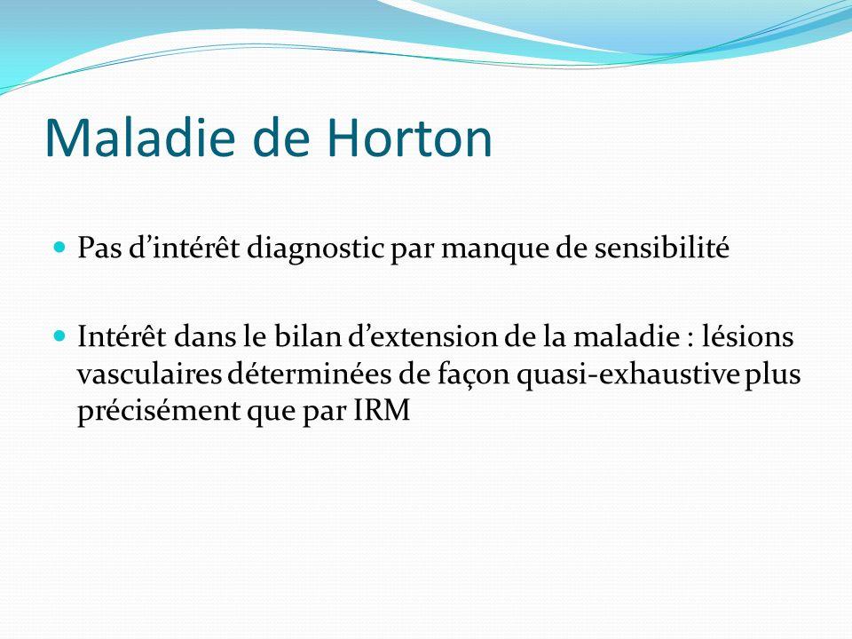 Maladie de Horton Pas dintérêt diagnostic par manque de sensibilité Intérêt dans le bilan dextension de la maladie : lésions vasculaires déterminées d