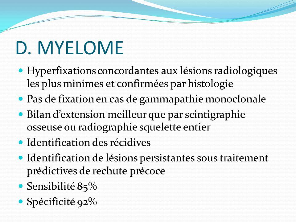 D. MYELOME Hyperfixations concordantes aux lésions radiologiques les plus minimes et confirmées par histologie Pas de fixation en cas de gammapathie m