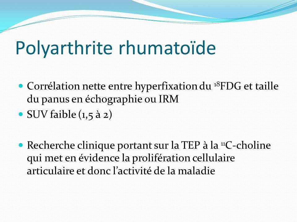Polyarthrite rhumatoïde Corrélation nette entre hyperfixation du 18 FDG et taille du panus en échographie ou IRM SUV faible (1,5 à 2) Recherche cliniq
