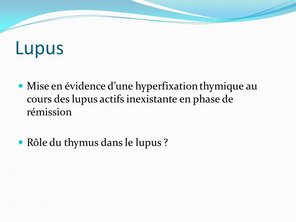 Lupus Mise en évidence dune hyperfixation thymique au cours des lupus actifs inexistante en phase de rémission Rôle du thymus dans le lupus ?