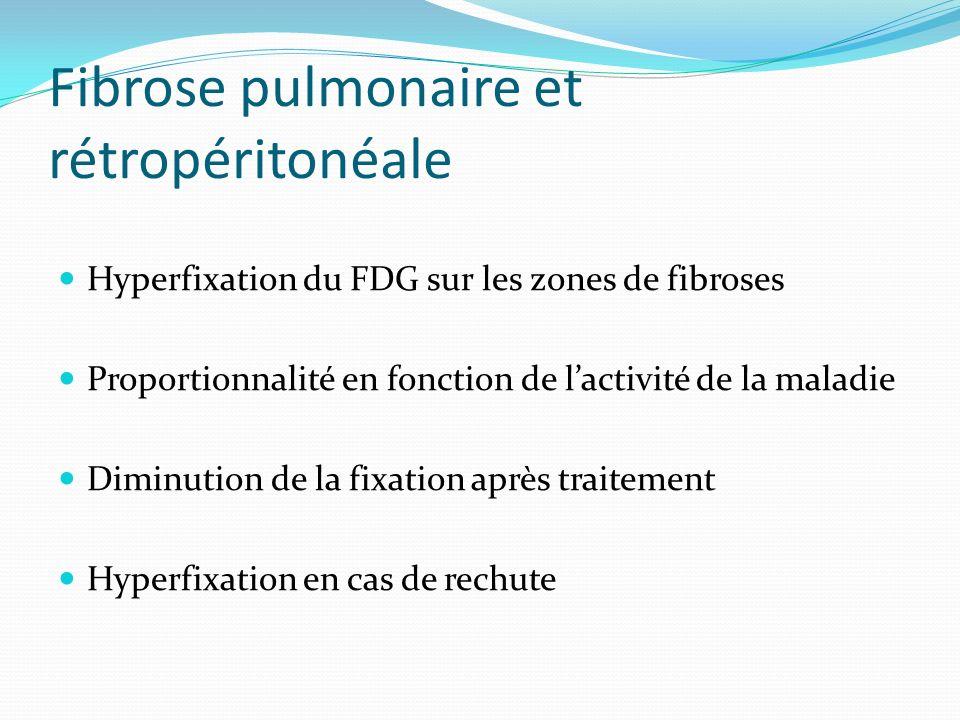 Fibrose pulmonaire et rétropéritonéale Hyperfixation du FDG sur les zones de fibroses Proportionnalité en fonction de lactivité de la maladie Diminuti