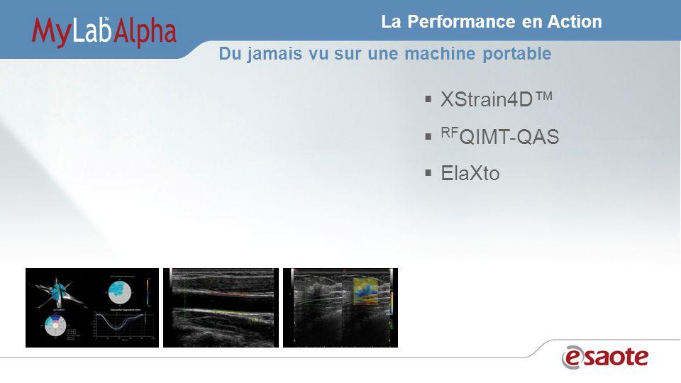 La Performance en Action XStrain4D RF QIMT-QAS ElaXto Du jamais vu sur une machine portable