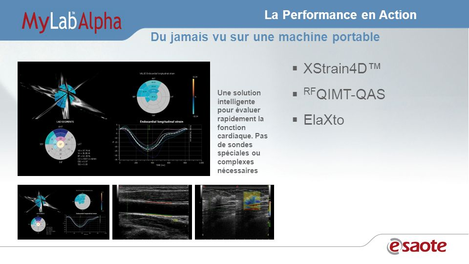 La Performance en Action XStrain4D RF QIMT-QAS ElaXto Une solution intelligente pour évaluer rapidement la fonction cardiaque.