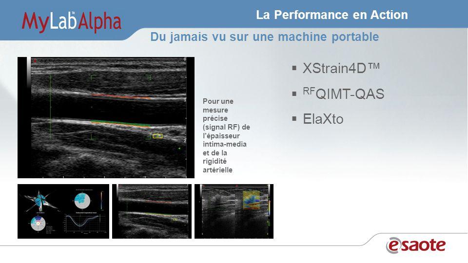 La Performance en Action XStrain4D RF QIMT-QAS ElaXto Pour une mesure précise (signal RF) de lépaisseur intima-media et de la rigidité artérielle Du jamais vu sur une machine portable