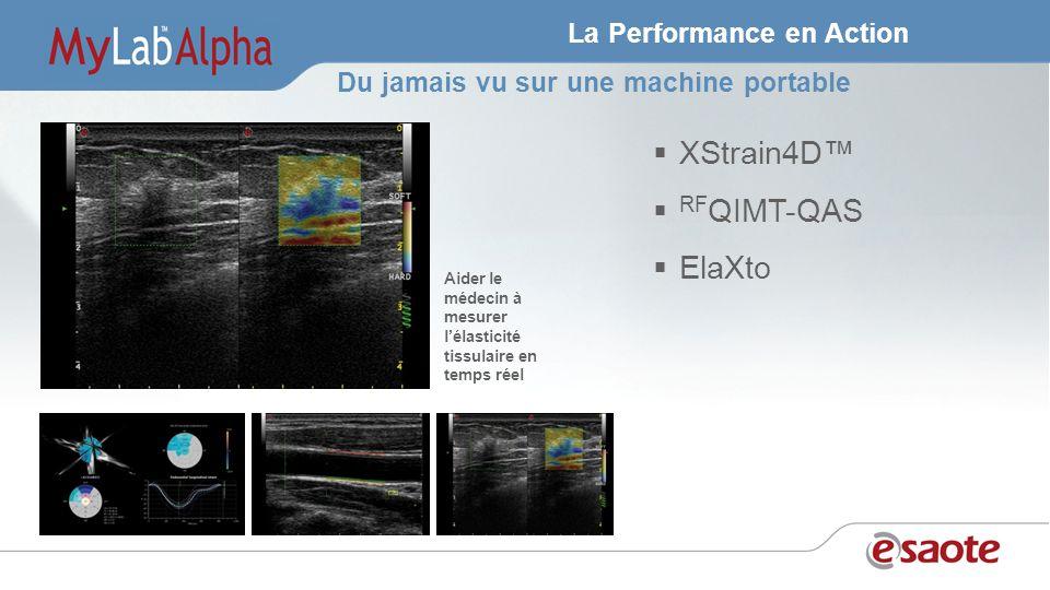 La Performance en Action XStrain4D RF QIMT-QAS ElaXto Aider le médecin à mesurer lélasticité tissulaire en temps réel Du jamais vu sur une machine portable