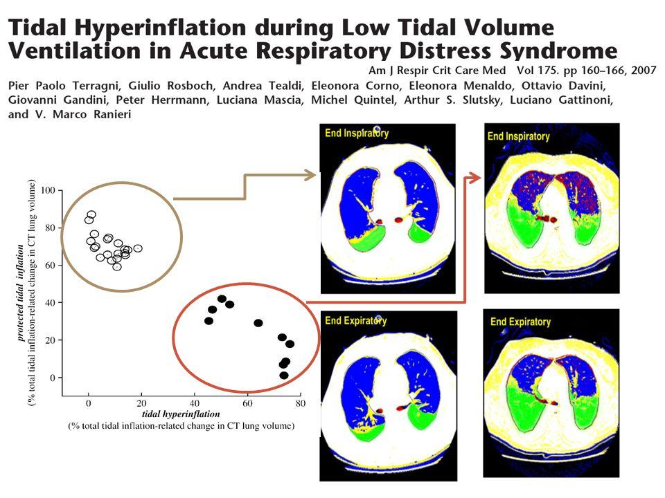 Courbe Volume-Pression VOHF VolumeVolumeVolumeVolume Pression Point dinflection inférieur Point dinflection supérieur