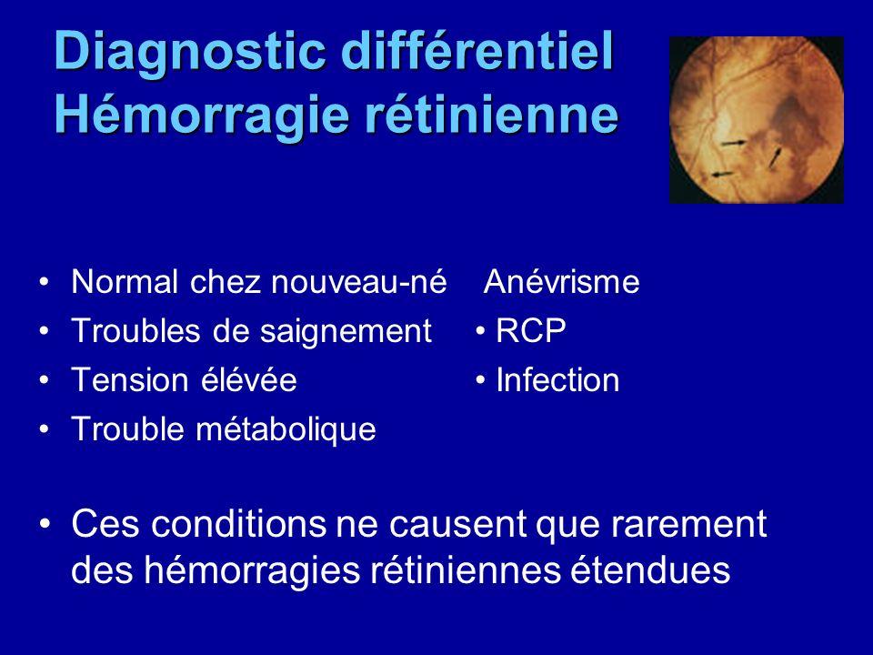 Diagnostic différentiel Hémorragie rétinienne Normal chez nouveau-né Anévrisme Troubles de saignement RCP Tension élévée Infection Trouble métabolique