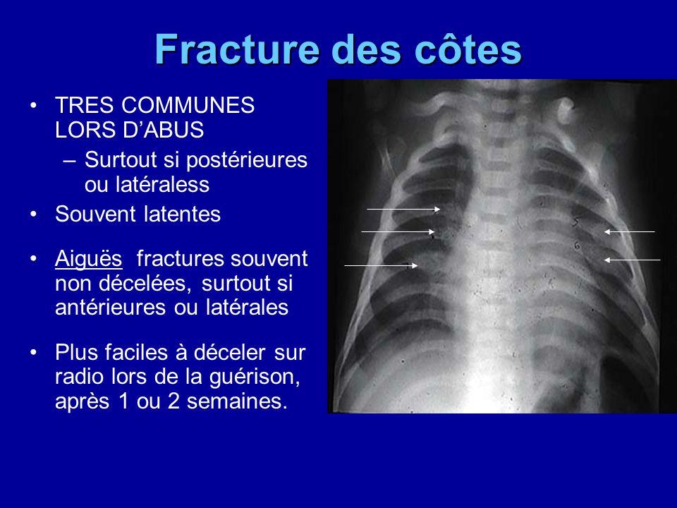 Fracture des côtes TRES COMMUNES LORS DABUS –Surtout si postérieures ou latéraless Souvent latentes Aiguës fractures souvent non décelées, surtout si